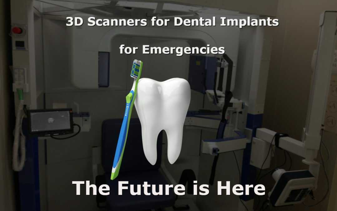 3d Scans For Dental Emergencies