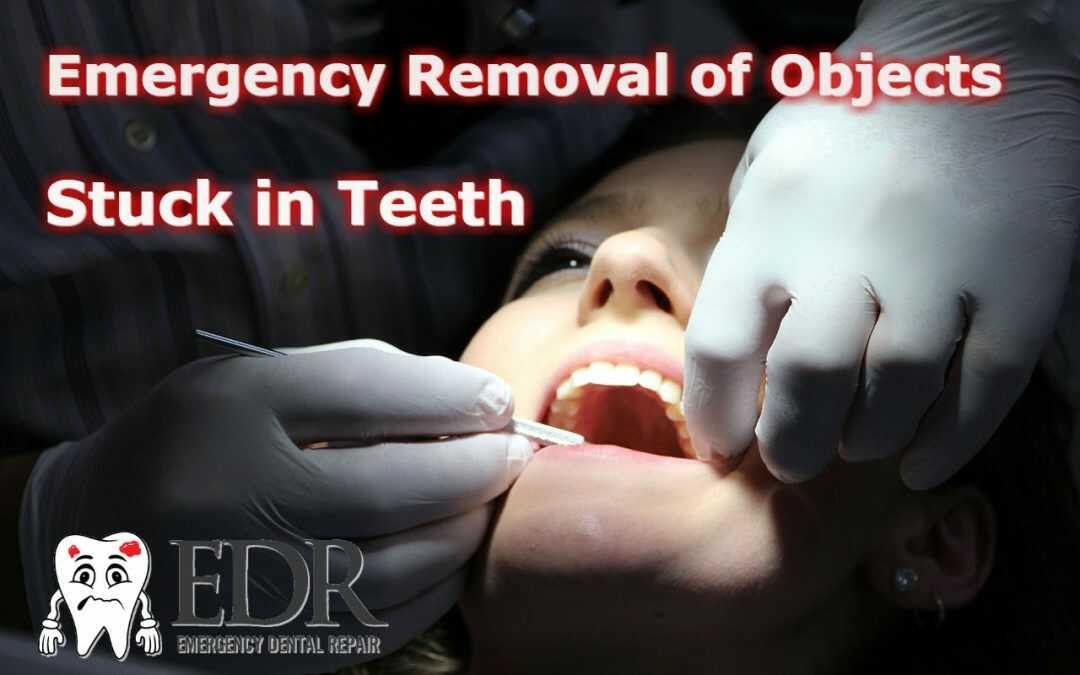 emergency removal of objects stuck in teeth
